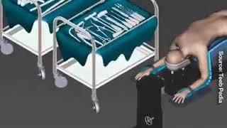 Ini pengalaman saya ketika saya patah tulang paha. waktu mau operasi dokternya mau motong tulang pah.