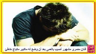 فنان مصرى مشهور أصيب بالعمى بعد أن وضع له ماكيير مكياج خاطئ...فعلا مأساة...!!