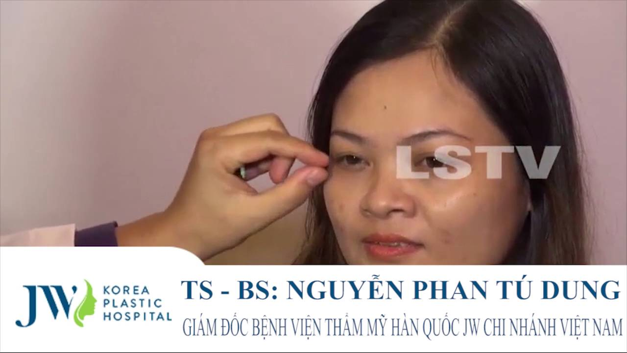 Phẫu thuật Midface trẻ hoá mắt 3 in 1 tại Bệnh viện JW Hàn Quốc