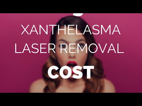 Xanthelasma laser removal cost, is it worth it? - YouTube