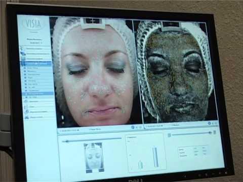 Диагностика кожи аппарат «Visia» — exkluziv.ru