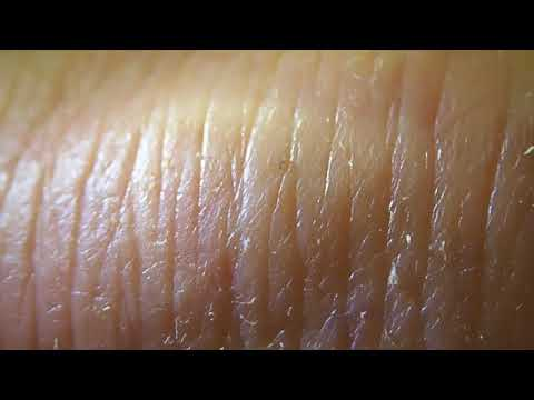 Morgellons. My doctor changed his mind after viewing this