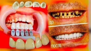 Виниры и люминиры, зачем их приклеивают на зубы