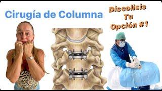 Ozonoterapia y Hernia de disco sin cirugia