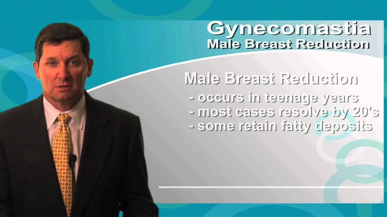 how to know i have gynecomastia