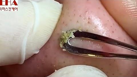 68-4.코 블랙헤드제거와 턱 여드름 압출영상입니다.