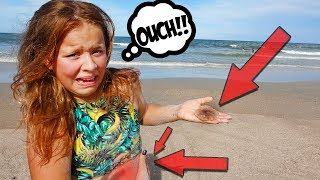 WORST JELLY FISH STING EVER!! ON FATHER'S DAY!