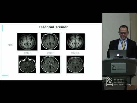 Focused Ultrasound Thalamotomy For Essential Tremor - Ryder Gwinn, MD