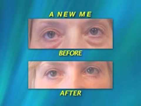 virginia-area-plastic-surgeon-shares-amazing-cheek-lift-results