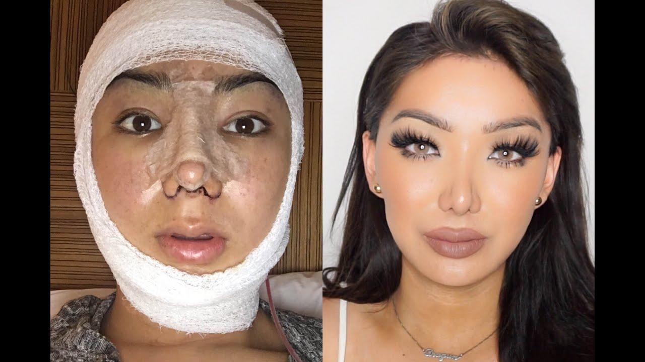 my facial plastic surgery story! | dragun - youtube