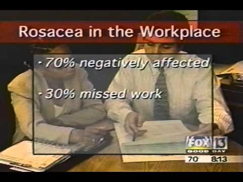 """Good Day Tampa Bay"" report on rosacea 4/11/01"
