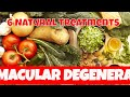 Macular Degeneration 6 Natural Treatments for Macular Degeneration symptoms
