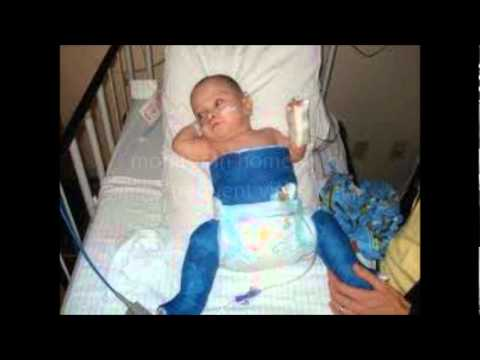 Congenital Hip Dysplasia