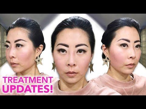 are-korean-beauty-treatments-worth-it?-|-lei-clinic