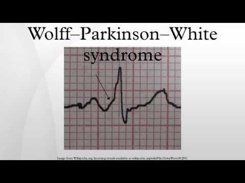 Wolff–Parkinson–White syndrome - YouTube