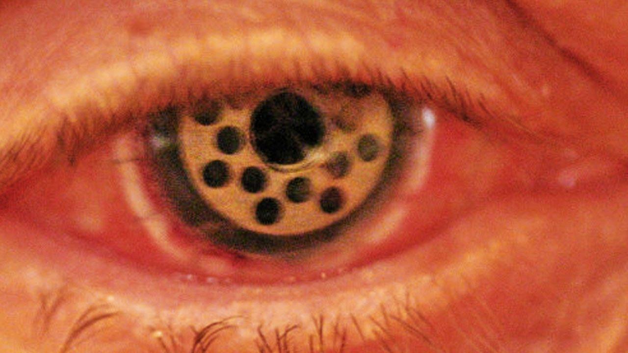 Trypophobia Eye Keratoprosthesis Youtube