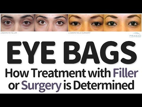 How Treating Eye Bags with Filler or Surgery is Determined