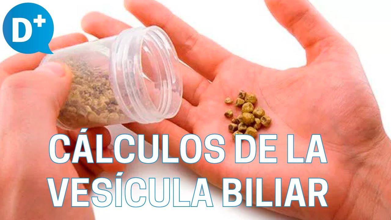 Sintomas de calculos en la vesicula biliar