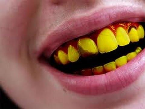 5-penyebab-gigi-menjadi-kuning-dan-cara-mengatasinya