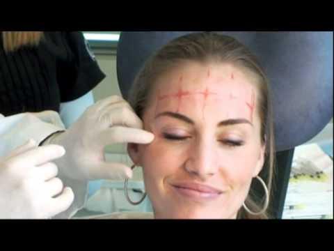 BOTOX BEFORE AFTER Beautiful South Beach Model Dermatology