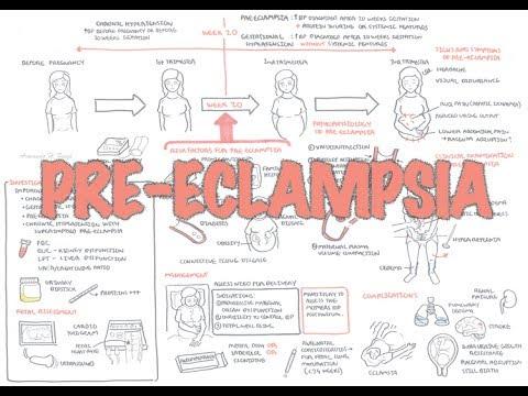 Pre Eclampsia - Overview (pathophysiology, Presentation, Treatment)