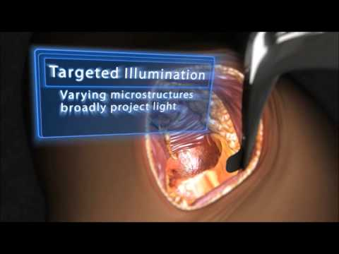 EIGR Surgical Illumination Technology from Invuity