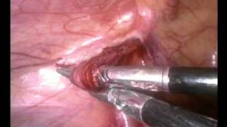 Repeat youtube video laparoscopic varicocelectomy varicocele Ligation by Dr M Faisal Murad