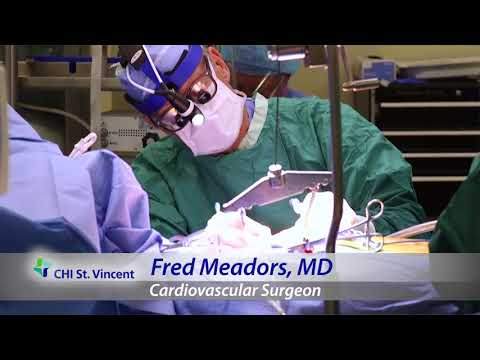 Dr. Fred Meadors, Cardiovascular Surgery, CHI St. Vincent, Little Rock, Arkansas