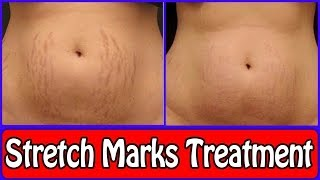 Stretch Marks Removal Cream with Treatment | Get Rid of Stretch Marks Fast In Weeks |RABIA SKIN CARE