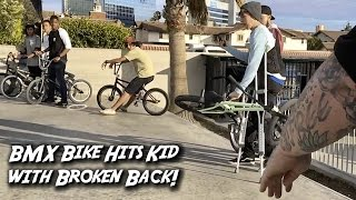 HIS BIKE HIT A GUY WITH A BROKEN BACK!