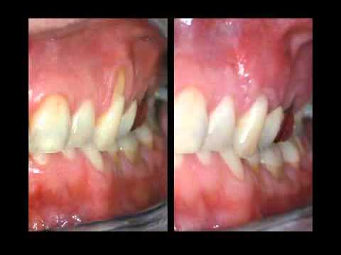 Treatment For Receding Gums Youtube