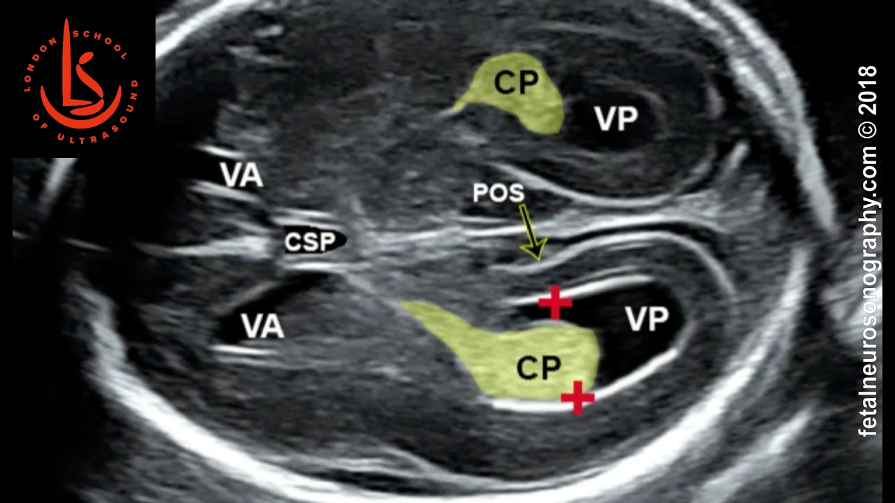 Fetal lateral ventricle measurements: How to measure posterior ventricle  for ventriculomegaly