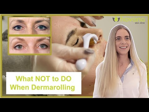 DO NOT Do This When Derma Rolling The Face