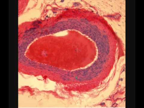 Синдром позвоночной артерии - лечение, симптомы, причины