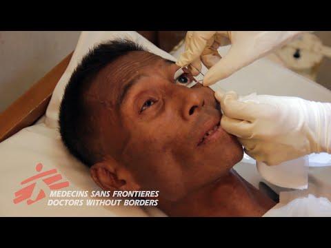Myanmar - HIV-Related Blindness