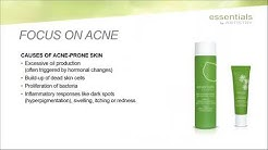 hqdefault - Artistry Essentials Acne Care