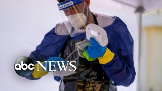 US coronavirus death toll tops 150,000