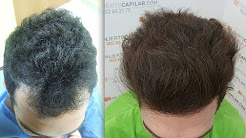 5160 FU's. Hair Transplant by FUE Technique. Injertocapilar.com. 145/2012
