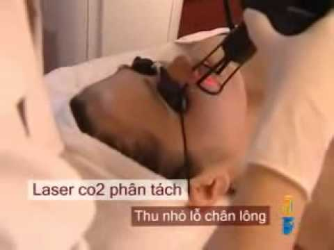 Laser CO2 phân tách - fractional CO2 laser