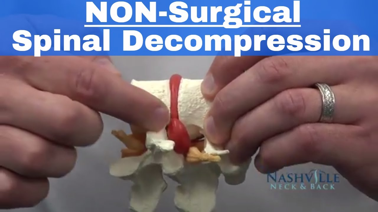 Decompression Therapy | Nashville Neck and Back