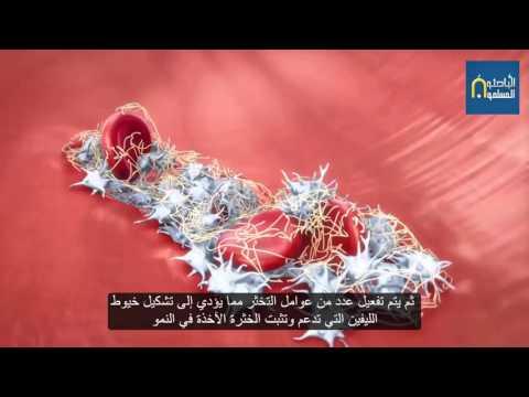 تشكل الخثرة clot formation
