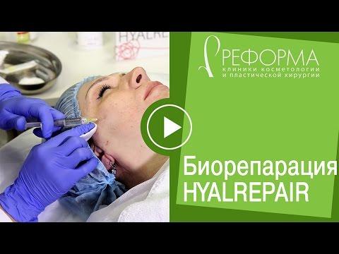 "Процедура Биорепарация Гиалрепайер® в клиниках ""Реформа"" by Dr. Mikhaylova"