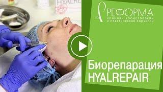 Процедура Биорепарация Гиалрепайер® в клиниках