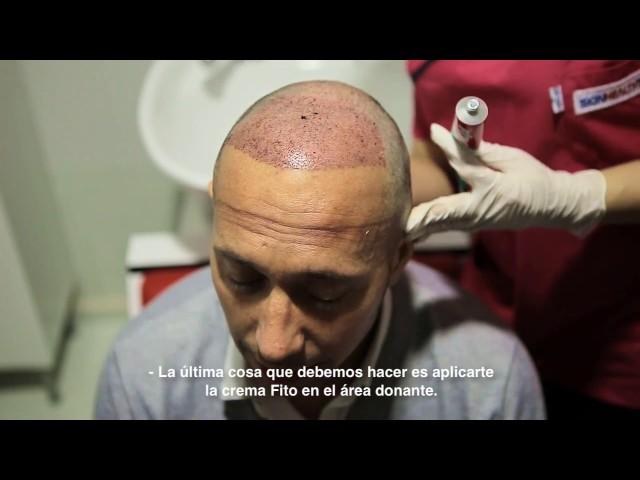 Trasplante Capilar Turquía - Sesión del lavado tras el Trasplante Capilar - Dra. Oyku Celen