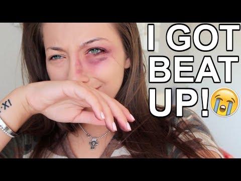Download Youtube: I GOT BEAT UP! PRANK ON BOYFRIEND!!!