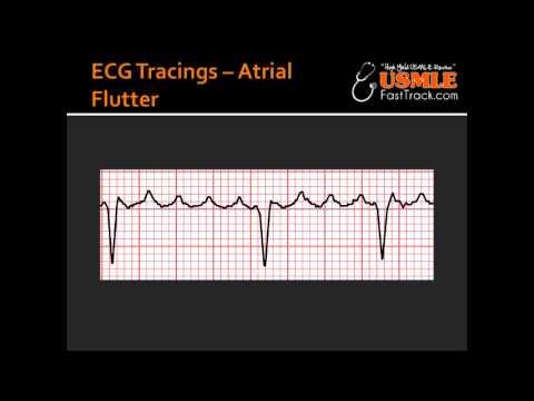 ECG Tracings -- Atrial Flutter