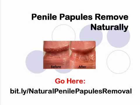 How to get rid of bumps on penile head