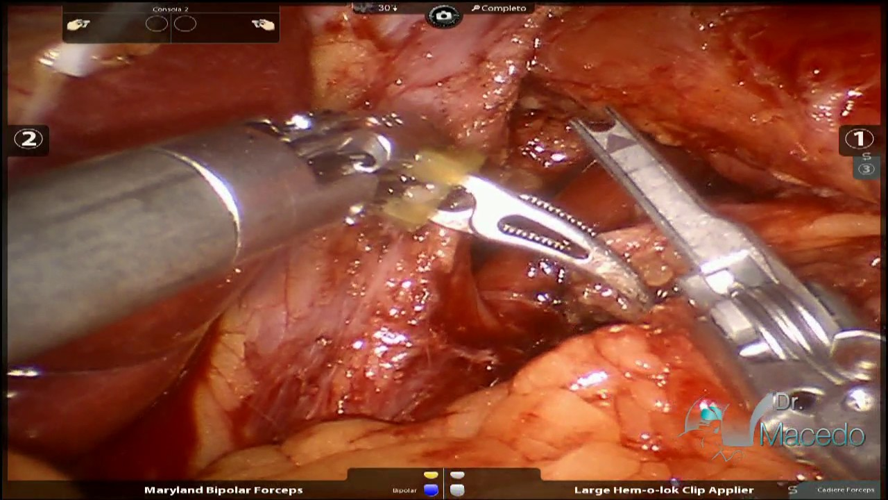 Robotic hiatal hernia repair