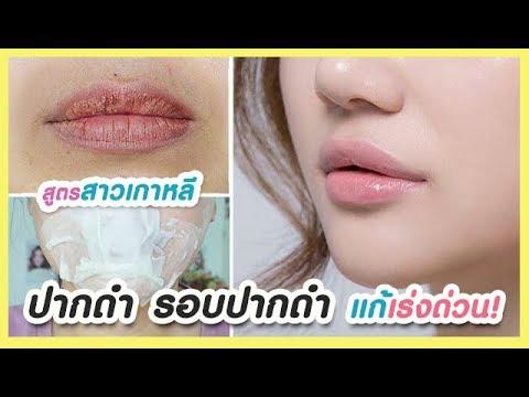 ปากดำ ขอบปากดำ รอบปากดำ แก้ได้เร่งด่วน! สูตรของสาวเกาหลี Korean remove dark lip, dark around mouth