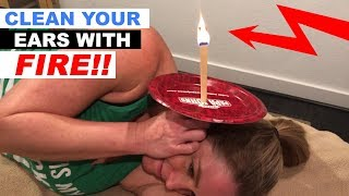 How To Do Ear Candling?? [EAR WAX REMOVAL]